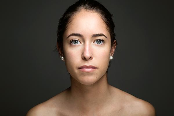 Vitiligo o tratamento precoce é a melhor opção